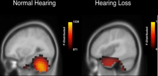 cognitive - shifts - hearing - loss - aids - brain