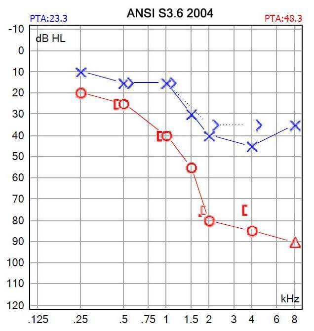 Audiogram-Audicus-Hearing-Aids