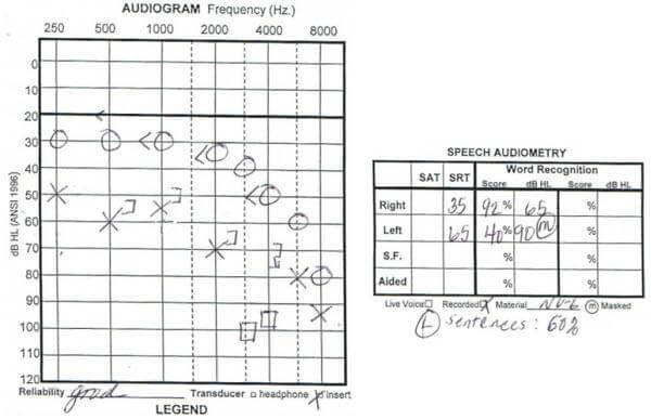 Hearing-Loss-Audicus-Word-Recognition-Score