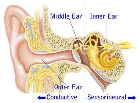 The Link Between Sensorineural Hearing Loss And Aging