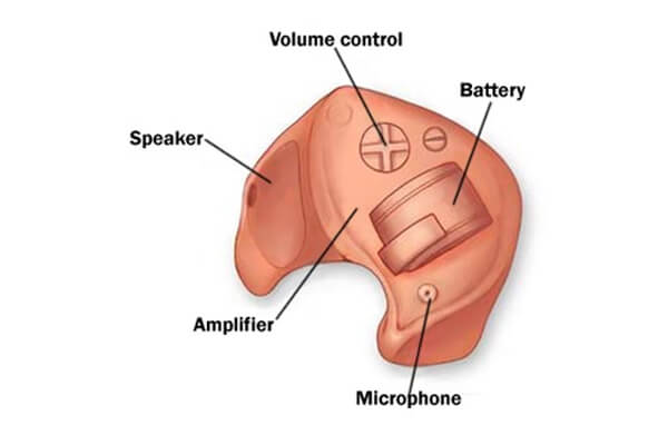 how does a hearing aid work